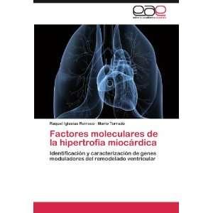 Factores moleculares de la hipertrofia miocárdica